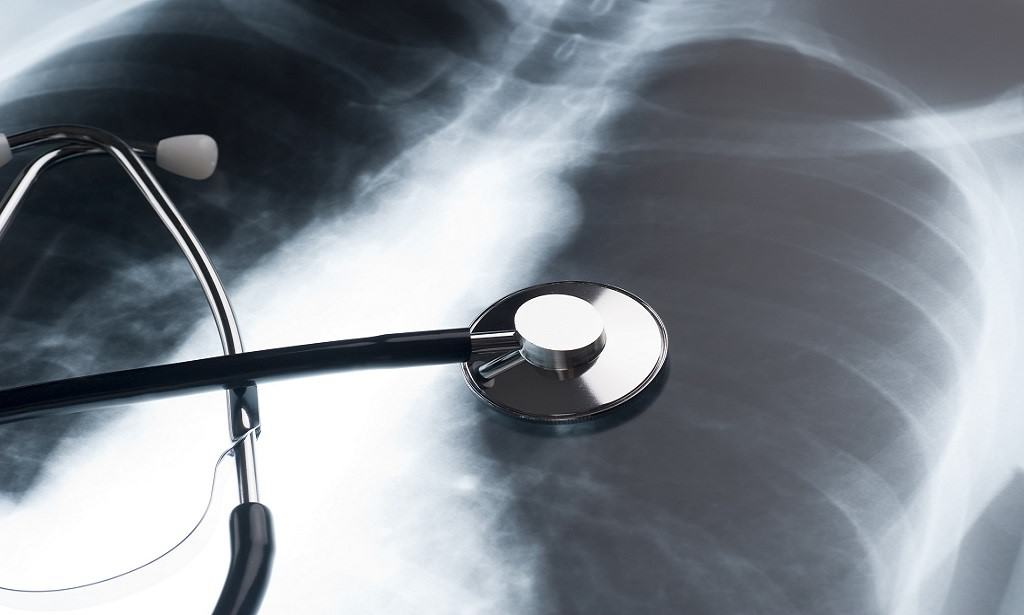 Asbestos Related illness Lung Cancer Case | Asbestos Claims